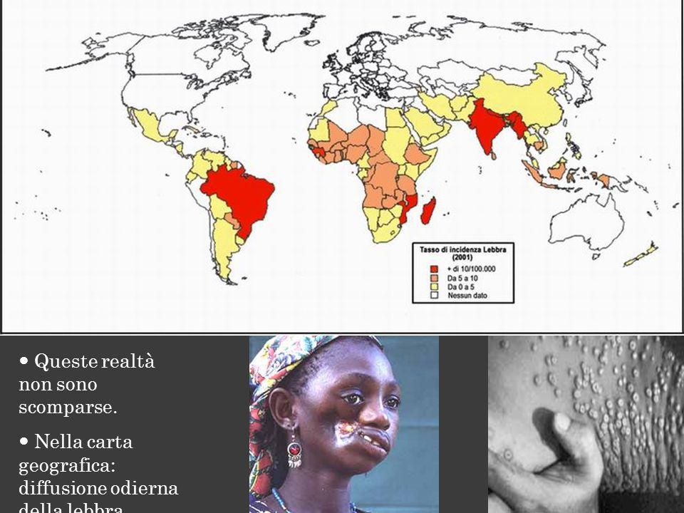 Queste realtà non sono scomparse. Nella carta geografica: diffusione odierna della lebbra.