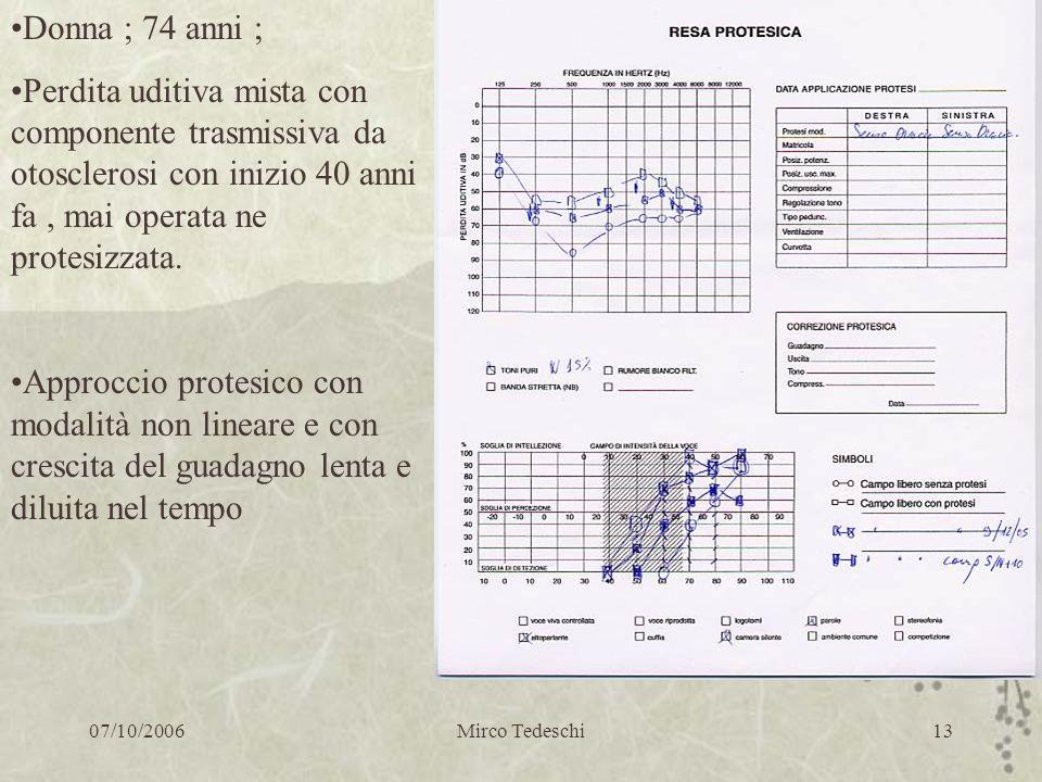 07/10/2006Mirco Tedeschi13 Donna ; 74 anni ; Perdita uditiva mista con componente trasmissiva da otosclerosi con inizio 40 anni fa, mai operata ne pro