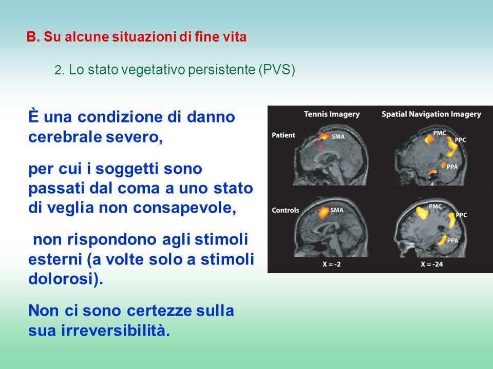 B. Su alcune situazioni di fine vita 2. Lo stato vegetativo persistente (PVS) È una condizione di danno cerebrale severo, per cui i soggetti sono pass