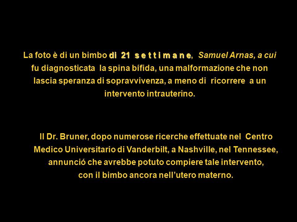 La foto è di un bimbo di 21 s e t t i m a n e e, Samuel Arnas, a cui fu diagnosticata la spina bífida, una malformazione che non lascia speranza di sopravvivenza, a meno di ricorrere a un intervento intrauterino.