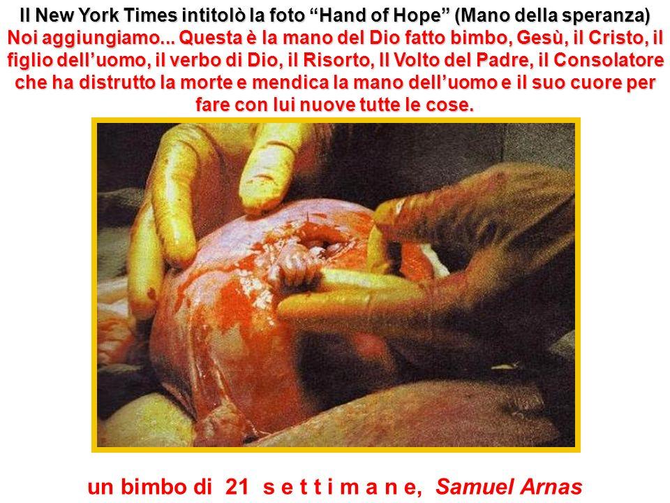 Il New York Times intitolò la foto Hand of Hope (Mano della speranza) Noi Noi aggiungiamo...
