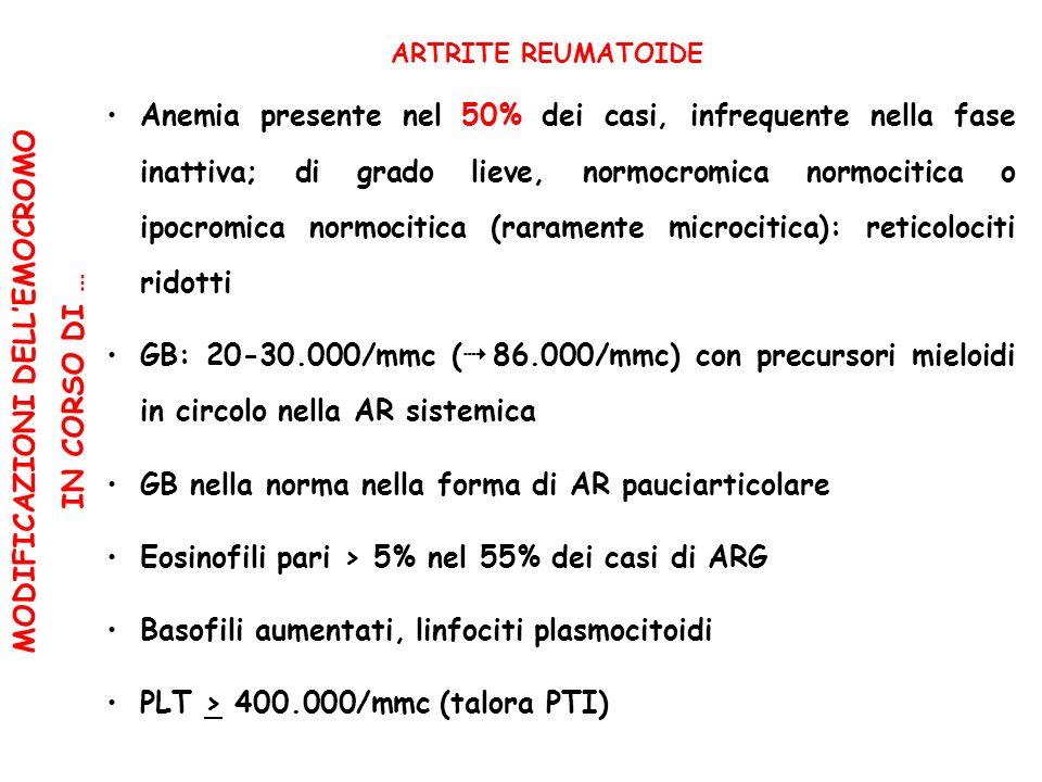 MODIFICAZIONI DELLEMOCROMO IN CORSO DI … ARTRITE REUMATOIDE Anemia presente nel 50% dei casi, infrequente nella fase inattiva; di grado lieve, normocromica normocitica o ipocromica normocitica (raramente microcitica): reticolociti ridotti GB: 20-30.000/mmc ( 86.000/mmc) con precursori mieloidi in circolo nella AR sistemica GB nella norma nella forma di AR pauciarticolare Eosinofili pari > 5% nel 55% dei casi di ARG Basofili aumentati, linfociti plasmocitoidi PLT > 400.000/mmc (talora PTI)