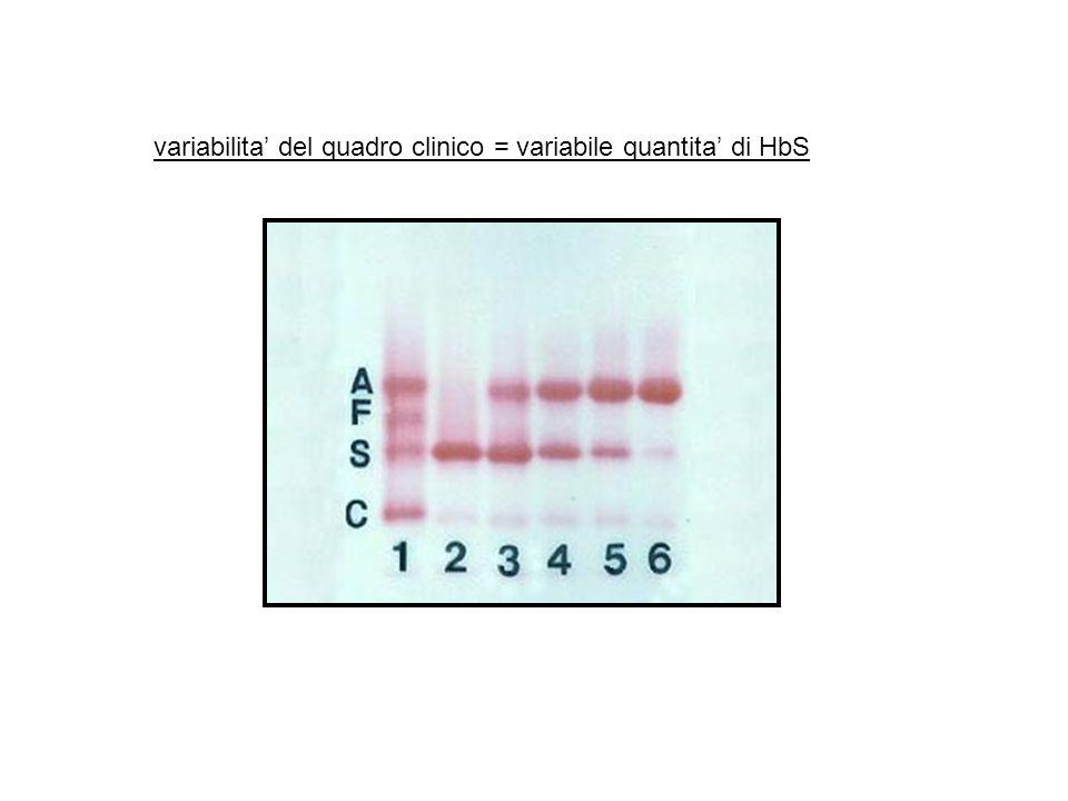 variabilita del quadro clinico = variabile quantita di HbS