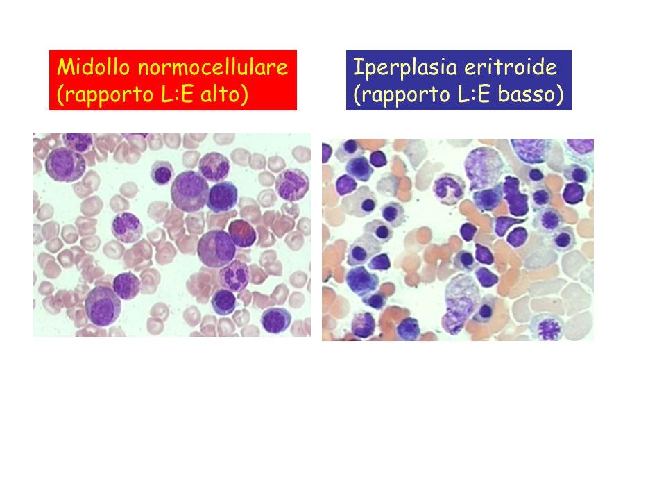 Midollo normocellulare (rapporto L:E alto) Iperplasia eritroide (rapporto L:E basso)