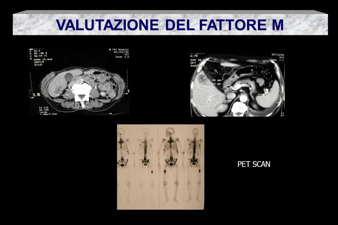 VALUTAZIONE DEL FATTORE M PET SCAN