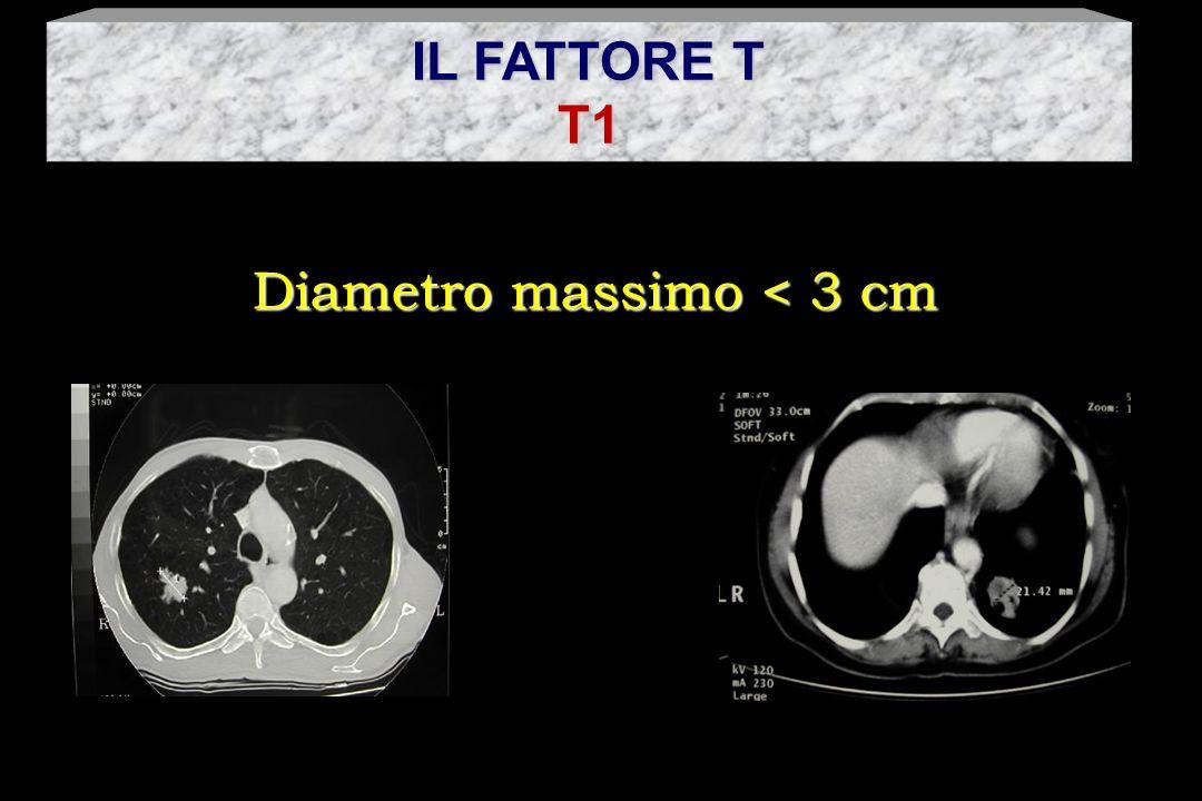 T2 Neoplasia con una delle seguenti caratteristiche: - diametro massimo > 3 cm - che infiltra il bronco principale ad oltre 2 cm dalla carena - che affiora alla pleura viscerale
