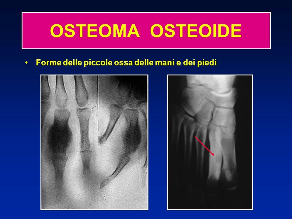 Forme delle piccole ossa delle mani e dei piedi OSTEOMA OSTEOIDE