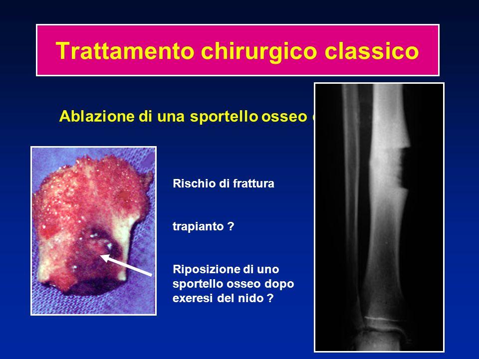 Trattamento chirurgico classico Ablazione di una sportello osseo con il nido Rischio di frattura trapianto ? Riposizione di uno sportello osseo dopo e