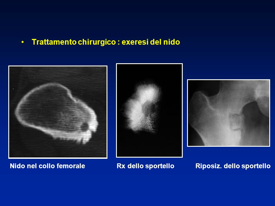 Trattamento chirurgico : exeresi del nido Nido nel collo femorale Rx dello sportello Riposiz. dello sportello