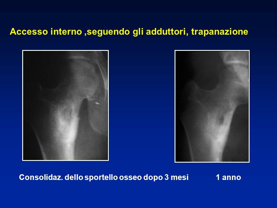 Consolidaz. dello sportello osseo dopo 3 mesi 1 anno Accesso interno,seguendo gli adduttori, trapanazione