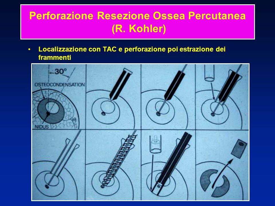 Localizzazione con TAC e perforazione poi estrazione dei frammenti Perforazione Resezione Ossea Percutanea (R. Kohler)