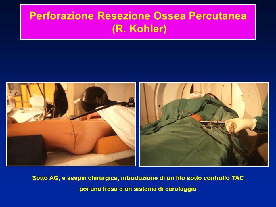Sotto AG, e asepsi chirurgica, introduzione di un filo sotto controllo TAC poi una fresa e un sistema di carotaggio Perforazione Resezione Ossea Percu