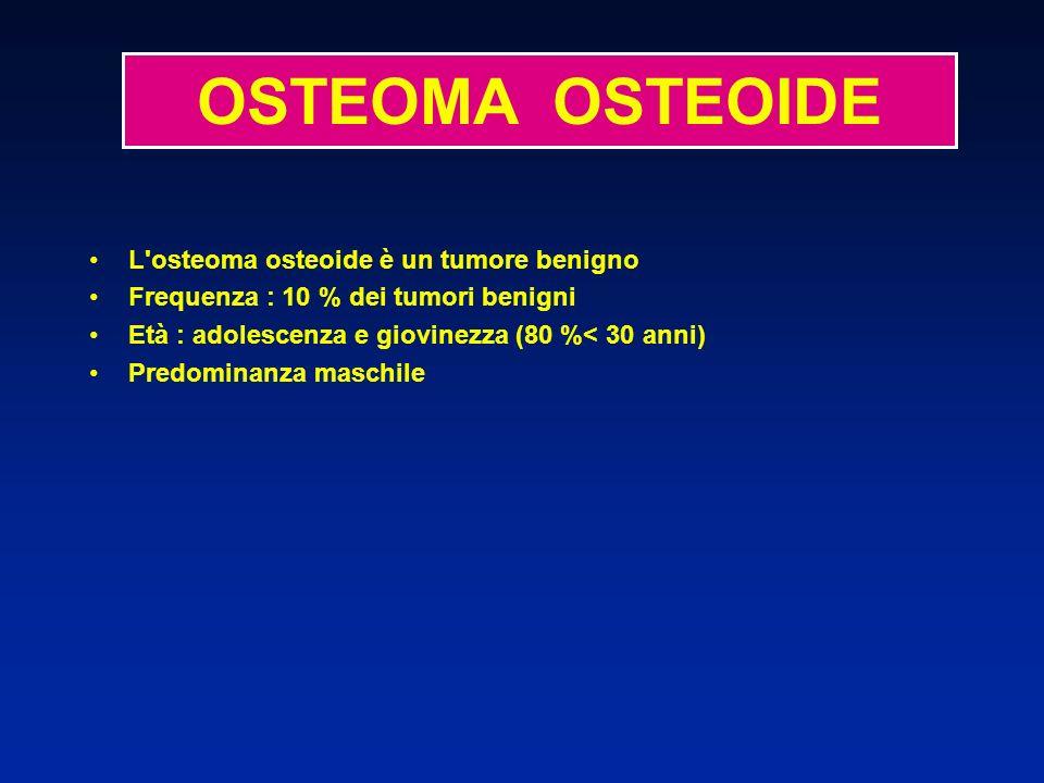 L osteoma osteoide è un tumore benigno Frequenza : 10 % dei tumori benigni Età : adolescenza e giovinezza (80 %< 30 anni) Predominanza maschile Localizzazione : - ossa lunghe (tibia, femore) : diafisi - rachide a volte - qualche localizzazione articolare - qualche forma periostea OSTEOMA OSTEOIDE