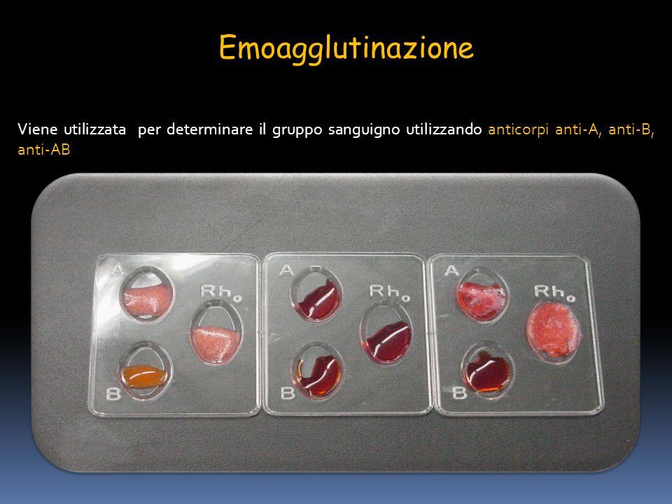 Emoagglutinazione Viene utilizzata per determinare il gruppo sanguigno utilizzando anticorpi anti-A, anti-B, anti-AB