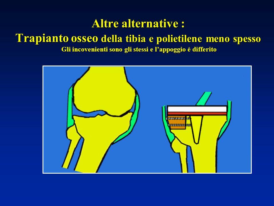 Altre alternative : Trapianto osseo della tibia e polietilene meno spesso Gli incovenienti sono gli stessi e lappoggio é differito