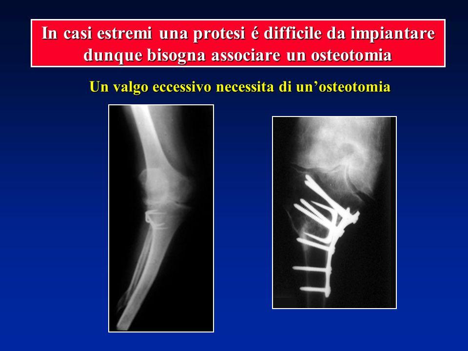 Un valgo eccessivo necessita di unosteotomia In casi estremi una protesi é difficile da impiantare dunque bisogna associare un osteotomia