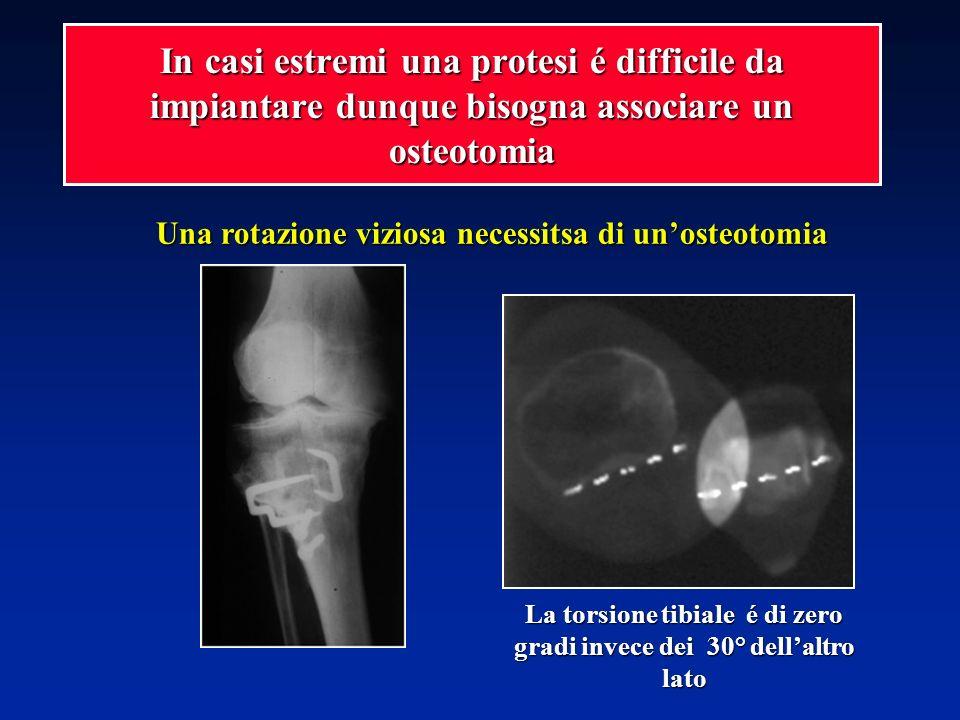 La torsione tibiale é di zero gradi invece dei 30° dellaltro lato Una rotazione viziosa necessitsa di unosteotomia In casi estremi una protesi é diffi