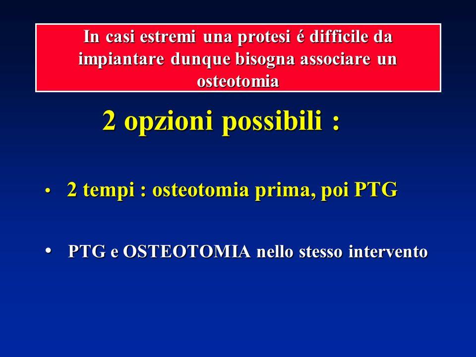 2 opzioni possibili : 2 opzioni possibili : 2 tempi : osteotomia prima, poi PTG 2 tempi : osteotomia prima, poi PTG PTG e OSTEOTOMIA nello stesso inte