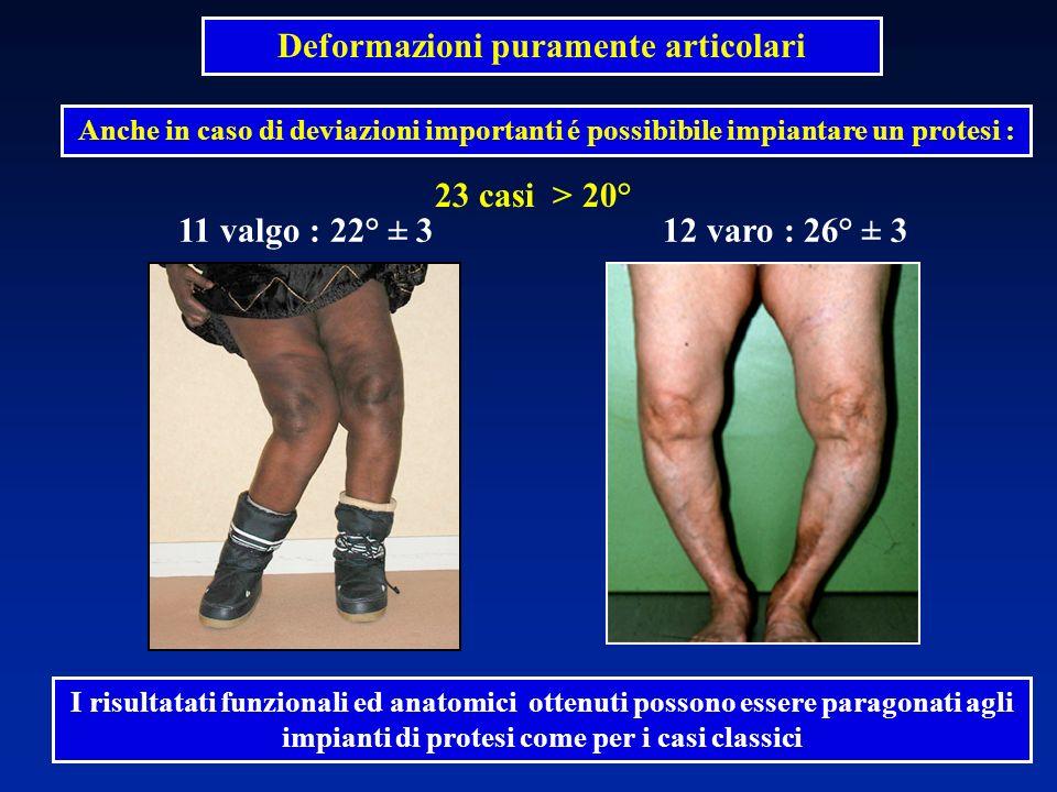 23 casi > 20° Deformazioni puramente articolari Anche in caso di deviazioni importanti é possibibile impiantare un protesi : I risultatati funzionali ed anatomici ottenuti possono essere paragonati agli impianti di protesi come per i casi classici