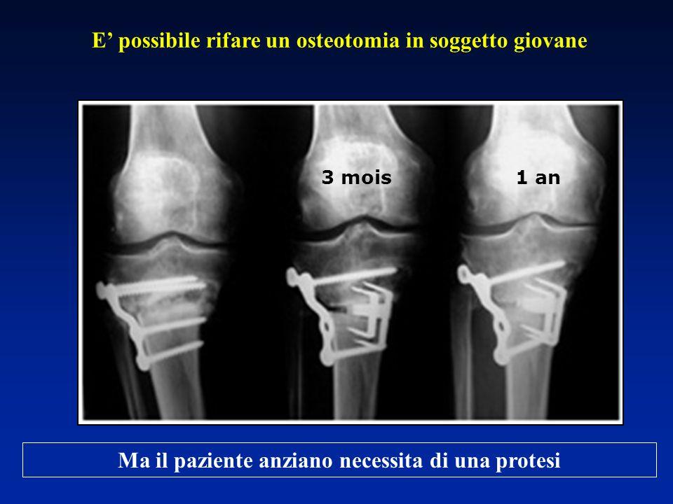 3 mois 1 an Ma il paziente anziano necessita di una protesi E possibile rifare un osteotomia in soggetto giovane