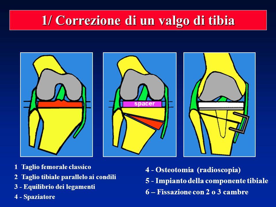 1/ Correzione di un valgo di tibia 1 Taglio femorale classico 2 Taglio tibiale parallelo ai condili 3 - Equilibrio dei legamenti 4 - Spaziatore 4 - Os