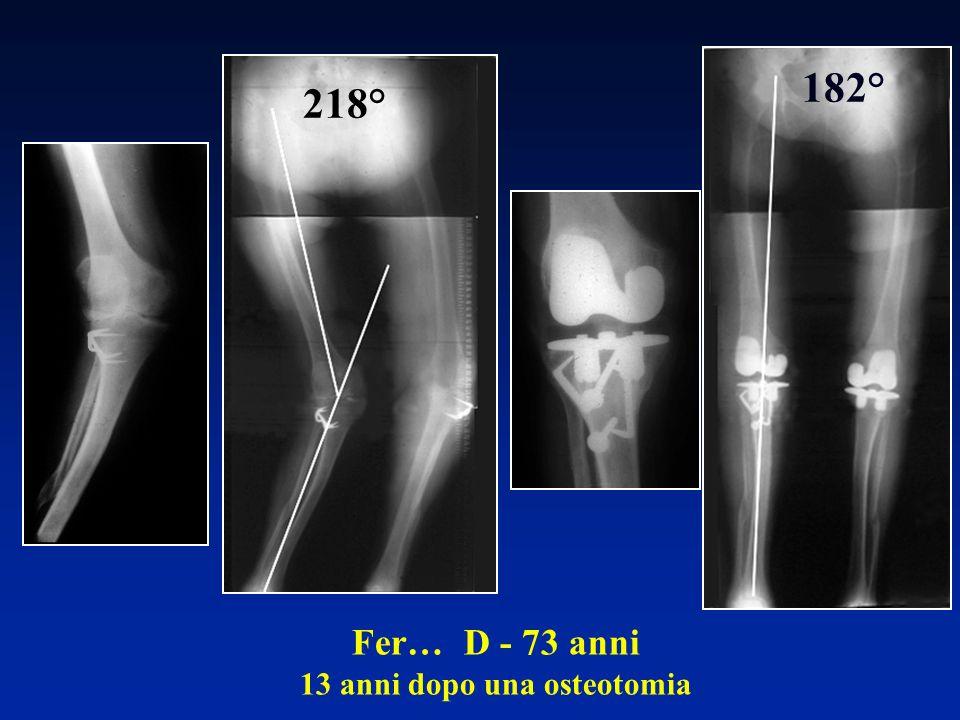 Fer… D - 73 anni 13 anni dopo una osteotomia 218° 182°