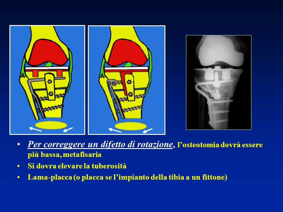 Per correggere un difetto di rotazione, losteotomia dovrà essere più bassa, metafisaria Si dovra elevare la tuberosità Lama-placca (o placca se limpia