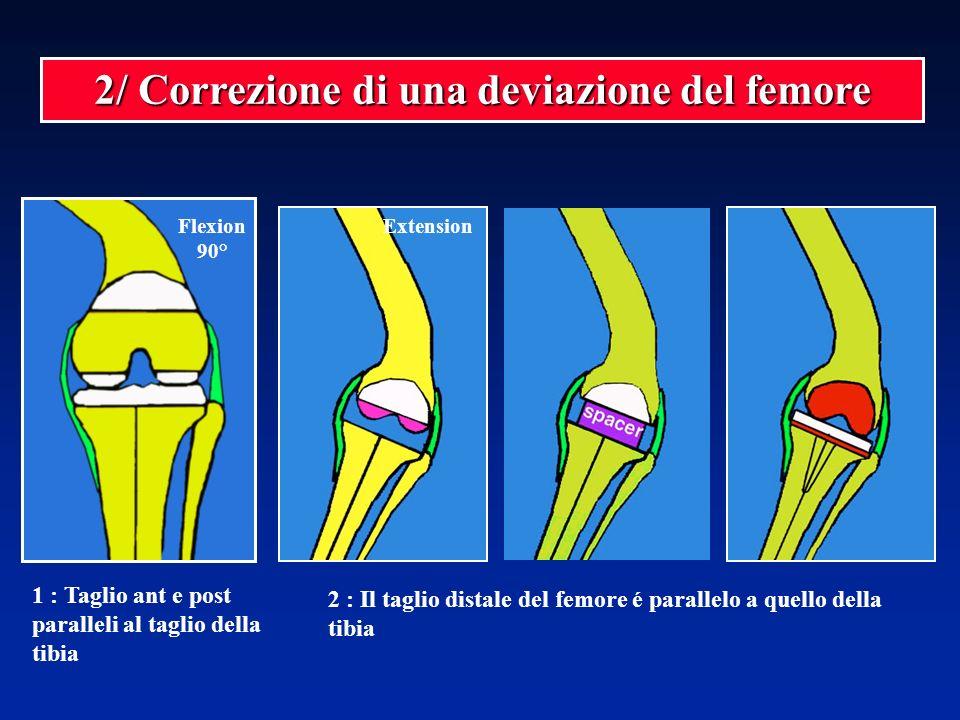 Flexion 90° 2/ Correzione di una deviazione del femore Extension 2 : Il taglio distale del femore é parallelo a quello della tibia 1 : Taglio ant e po
