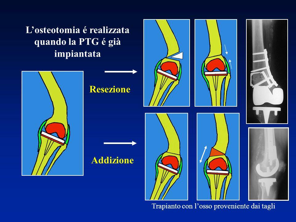 Resezione Addizione Trapianto con losso proveniente dai tagli Losteotomia é realizzata quando la PTG é già impiantata