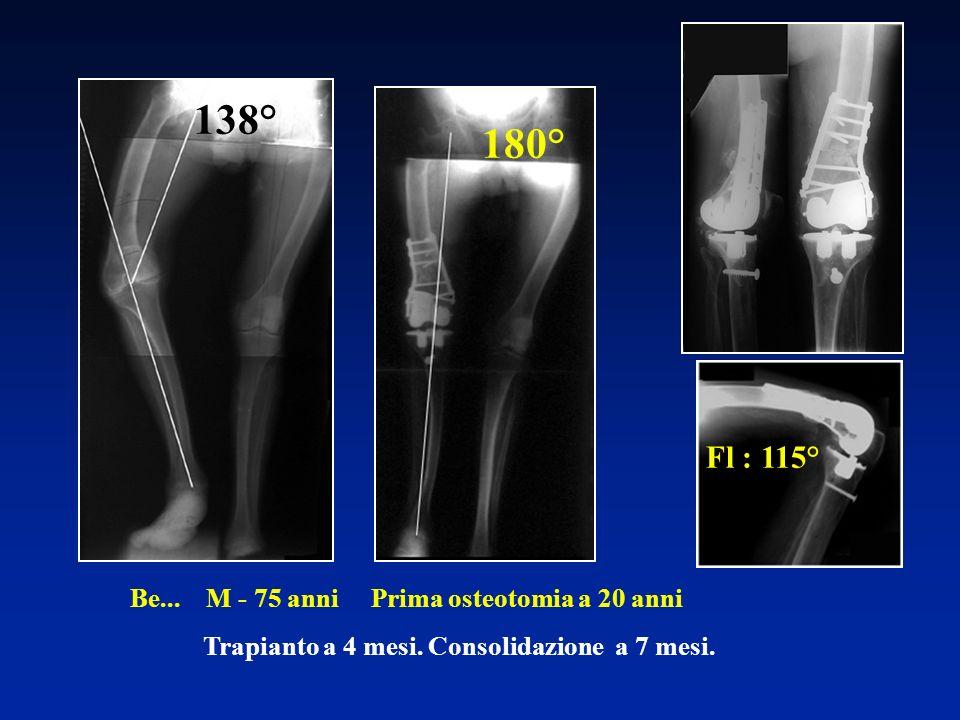 Be... M - 75 anni Prima osteotomia a 20 anni Trapianto a 4 mesi. Consolidazione a 7 mesi. 138° Fl : 115° 180°