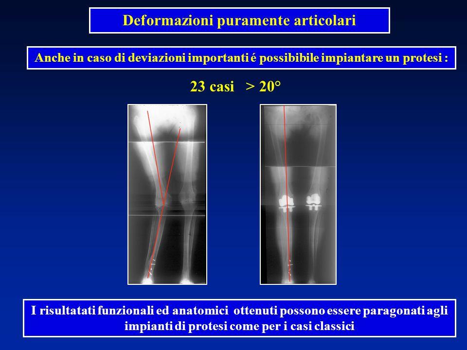 23 casi > 20° Deformazioni puramente articolari Anche in caso di deviazioni importanti é possibibile impiantare un protesi : I risultatati funzionali