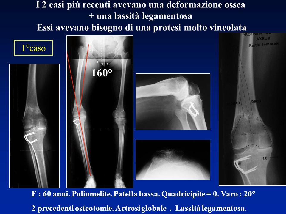 F : 60 anni. Poliomelite. Patella bassa. Quadricipite = 0. Varo : 20° 2 precedenti osteotomie. Artrosi globale. Lassità legamentosa. I 2 casi più rece