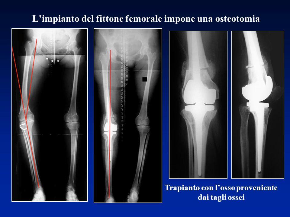 Trapianto con losso proveniente dai tagli ossei Limpianto del fittone femorale impone una osteotomia
