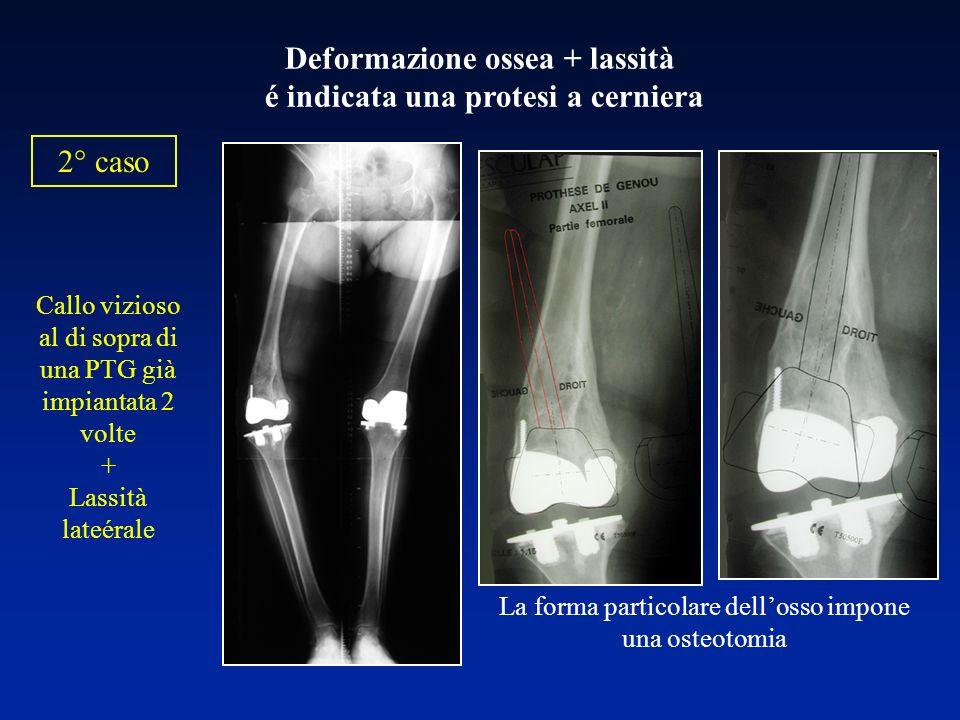 Deformazione ossea + lassità é indicata una protesi a cerniera Callo vizioso al di sopra di una PTG già impiantata 2 volte + Lassità lateérale La form