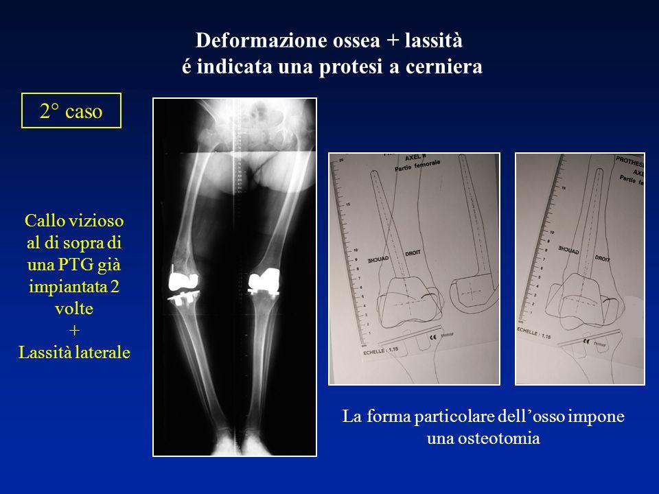La forma particolare dellosso impone una osteotomia 2° caso Deformazione ossea + lassità é indicata una protesi a cerniera Callo vizioso al di sopra d