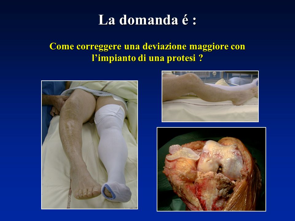 La domanda é : Come correggere una deviazione maggiore con limpianto di una protesi ?
