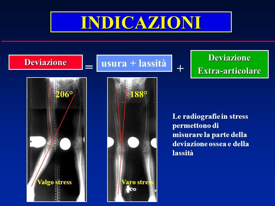 INDICAZIONI usura + lassitàDeviazione DeviazioneExtra-articolare + = Le radiografie in stress permettono di misurare la parte della deviazione ossea e
