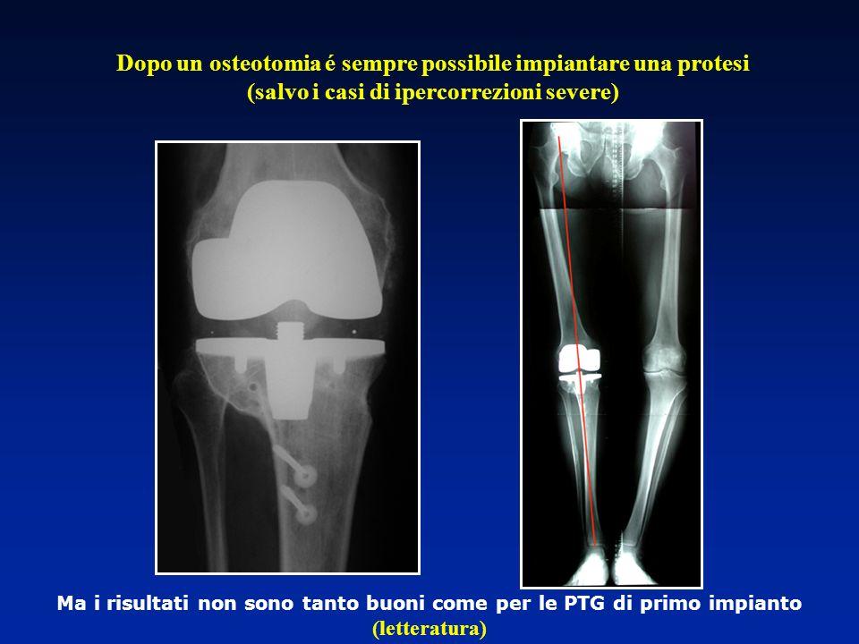 Dopo un osteotomia é sempre possibile impiantare una protesi (salvo i casi di ipercorrezioni severe) Ma i risultati non sono tanto buoni come per le P