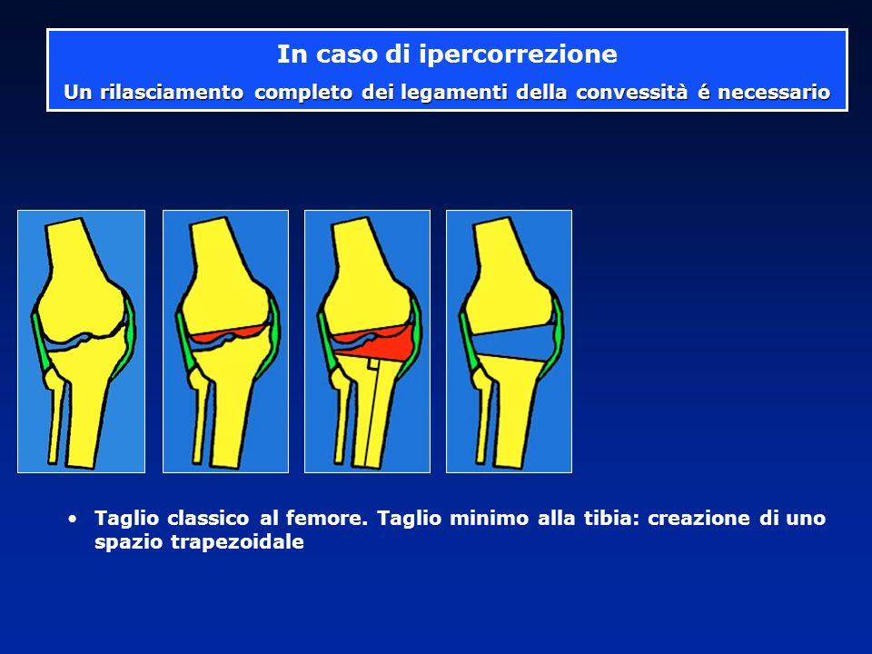 La forma particolare dellosso impone una osteotomia 2° caso Deformazione ossea + lassità é indicata una protesi a cerniera Callo vizioso al di sopra di una PTG già impiantata 2 volte + Lassità laterale