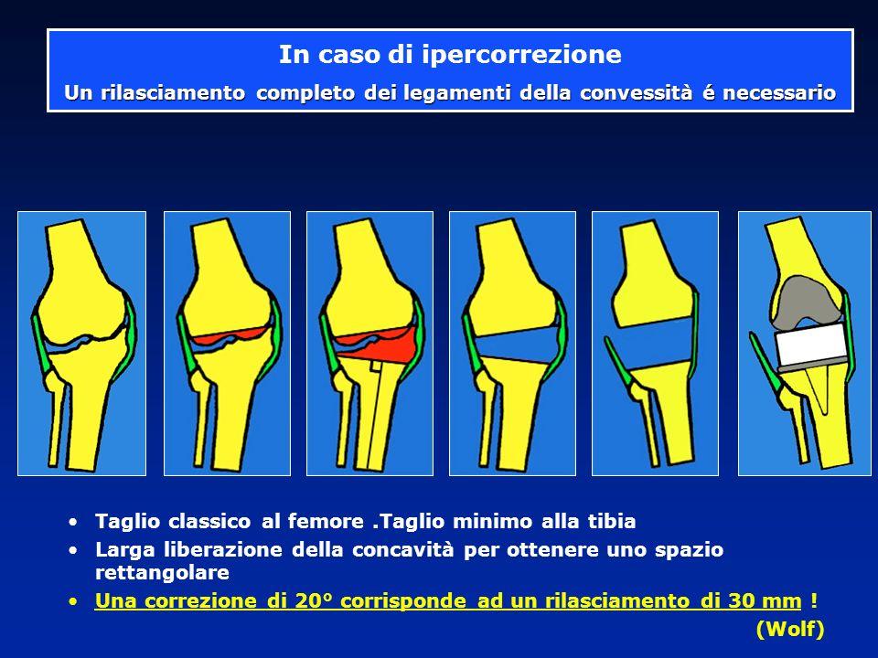 Prat..... H - 75 anni 55 anni dopo una osteotomia PTG + osteotomia di apertura 166° 180°