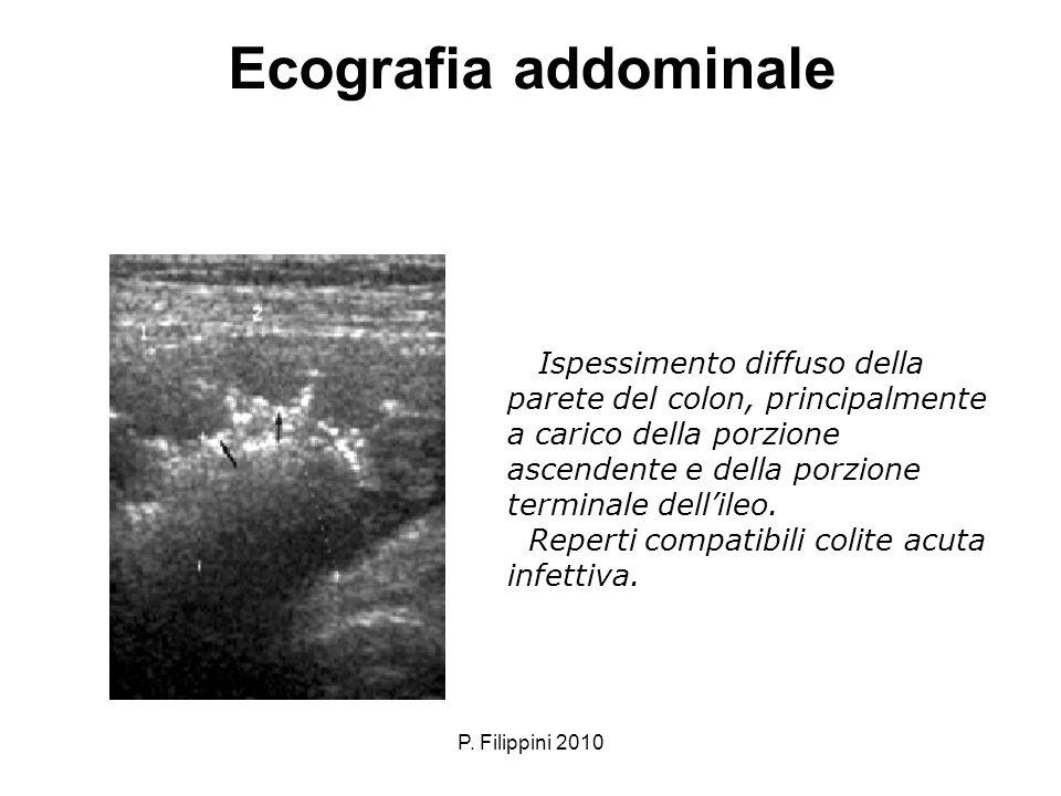 P. Filippini 2010 Ecografia addominale Ispessimento diffuso della parete del colon, principalmente a carico della porzione ascendente e della porzione