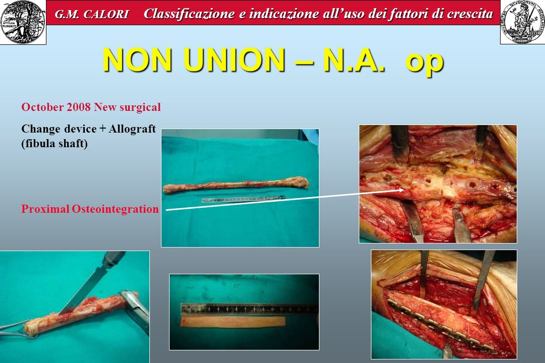 NON UNION – N.A. op October 2008 New surgical Change device + Allograft (fibula shaft) Proximal Osteointegration G.M. CALORI Classificazione e indicaz