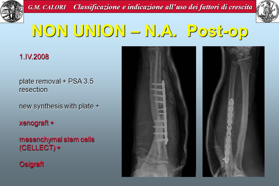 NON UNION – N.A. Post-op 1.IV.2008 plate removal + PSA 3.5 resection new synthesis with plate + xenograft + mesenchymal stem cells (CELLECT) + Osigraf