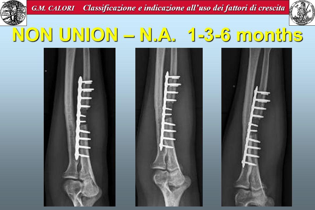 NON UNION – N.A. 1-3-6 months G.M. CALORI Classificazione e indicazione alluso dei fattori di crescita G.M. CALORI Classificazione e indicazione allus