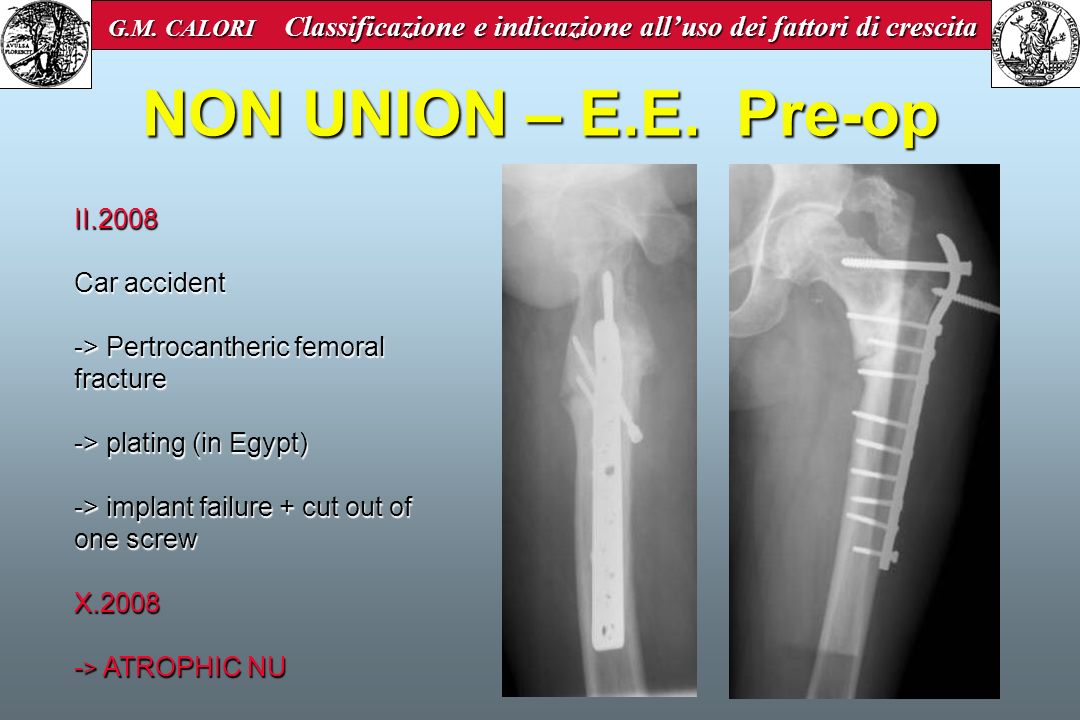NON UNION – E.E. Pre-op II.2008 Car accident -> Pertrocantheric femoral fracture -> plating (in Egypt) -> implant failure + cut out of one screw X.200