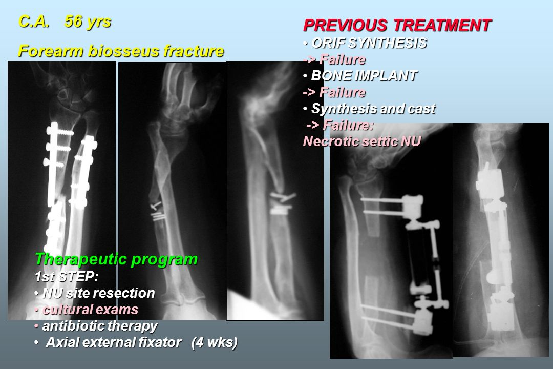 C.A. 56 yrs Forearm biosseus fracture Therapeutic program 1st STEP: NU site resection NU site resection cultural exams cultural exams antibiotic thera