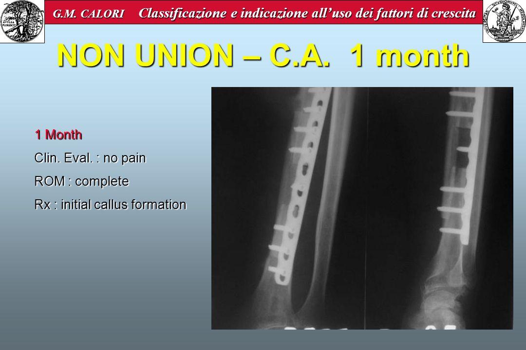 NON UNION – C.A. 1 month 1 Month Clin. Eval. : no pain ROM : complete Rx : initial callus formation G.M. CALORI Classificazione e indicazione alluso d