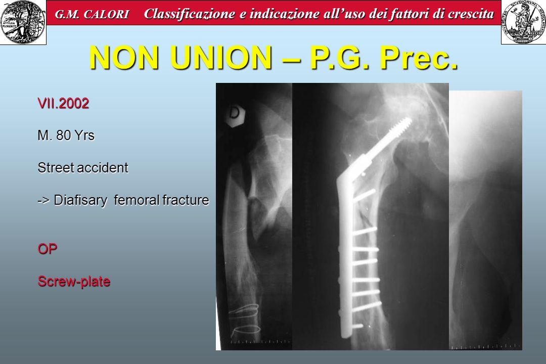 NON UNION – P.G. Prec. VII.2002 M. 80 Yrs Street accident -> Diafisary femoral fracture OPScrew-plate G.M. CALORI Classificazione e indicazione alluso