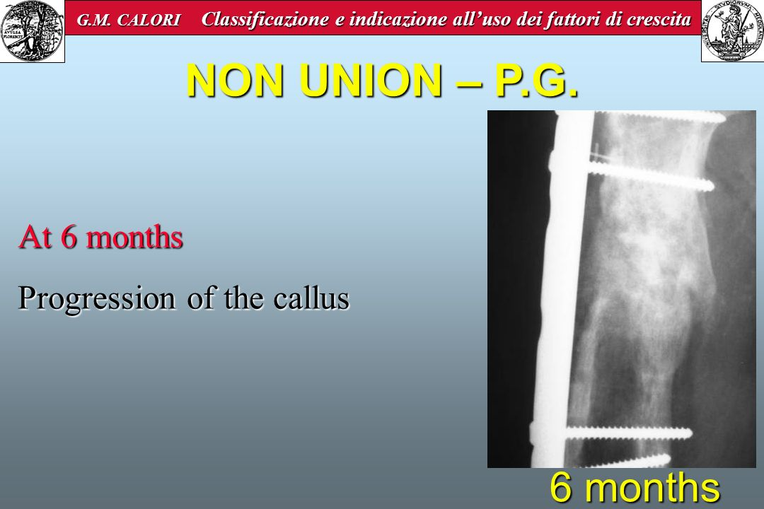 6 months At 6 months Progression of the callus NON UNION – P.G. G.M. CALORI Classificazione e indicazione alluso dei fattori di crescita G.M. CALORI C