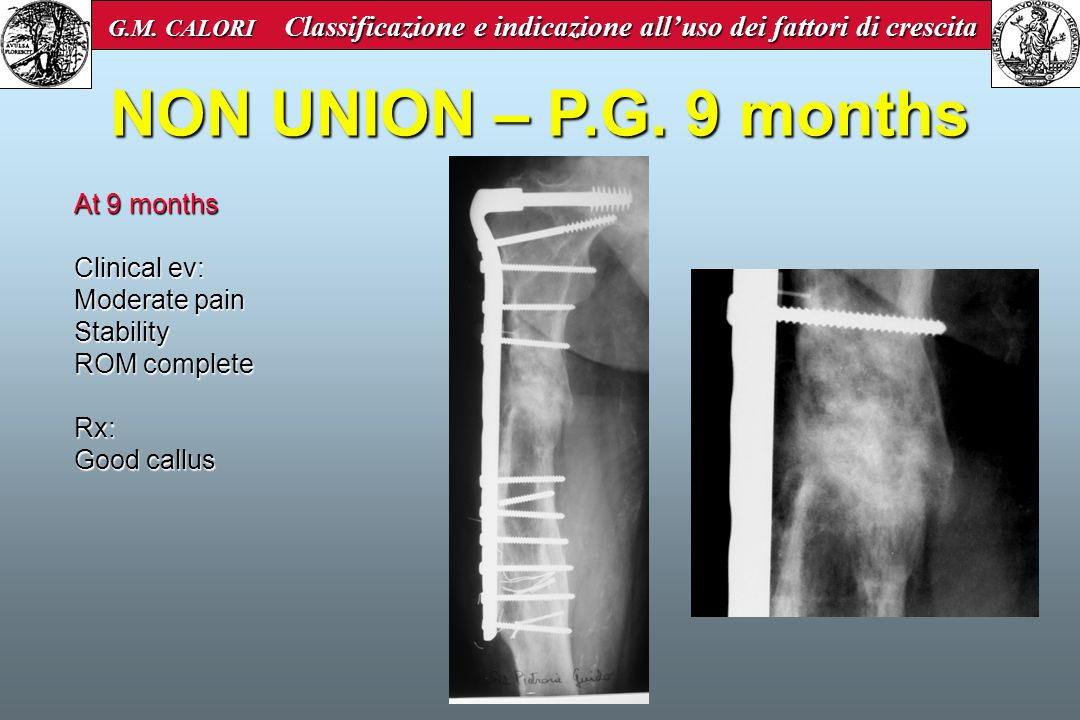 NON UNION – P.G. 9 months At 9 months Clinical ev: Moderate pain Stability ROM complete Rx: Good callus G.M. CALORI Classificazione e indicazione allu